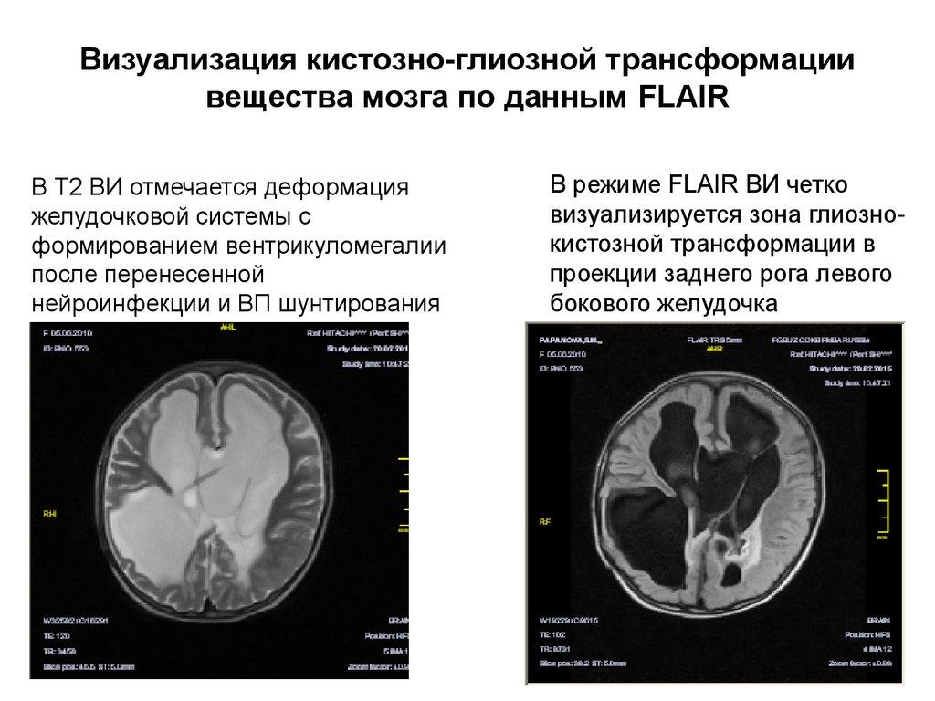 Мультикистозная трансформация головного мозга