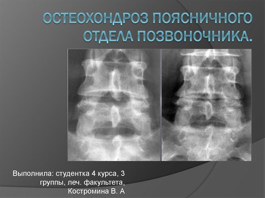 Неконгруэнтность суставных поверхностей поясничного отделапозвоночника чем опасно прогревание суставов с помощью инфракрасных лучей
