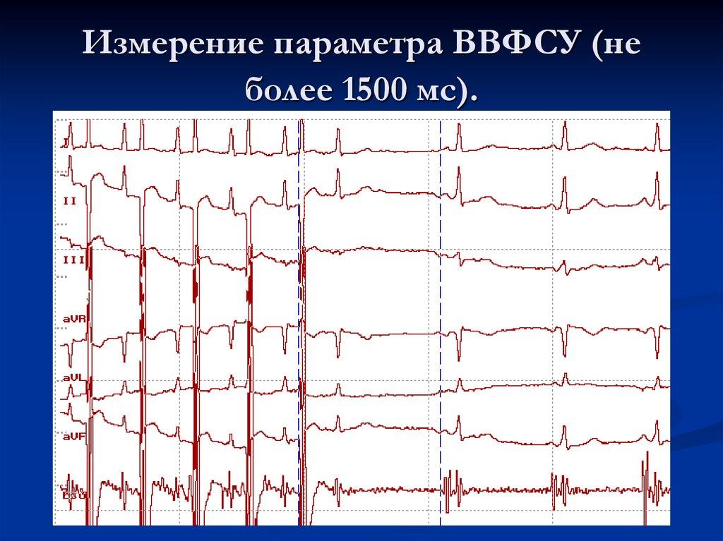Жену вдвоём русское - 1658 видео