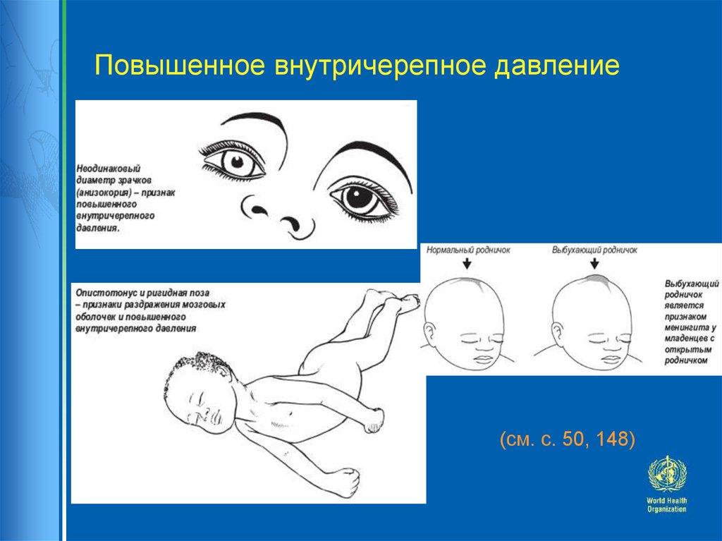 Как определяют внутричерепное давление у детей симптомы
