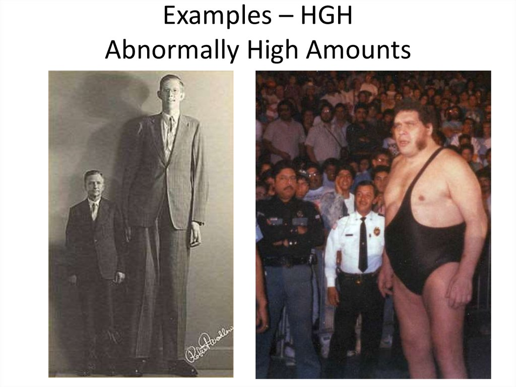 Examples – HGH Abnormally High Amounts