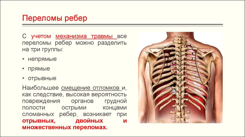 Переломы ребер клиника диагностика лечение