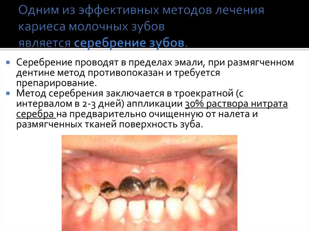 Методы лечения глубокого кариеса зубов