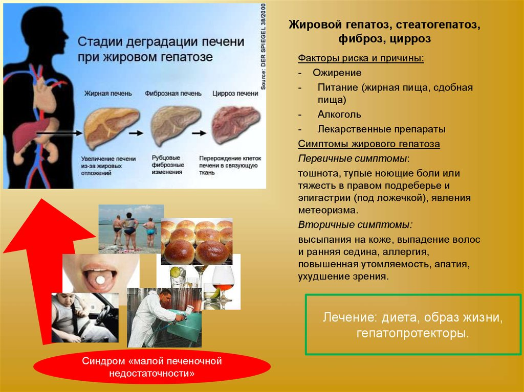 Жировой Гепатоз Лечение И Диета.