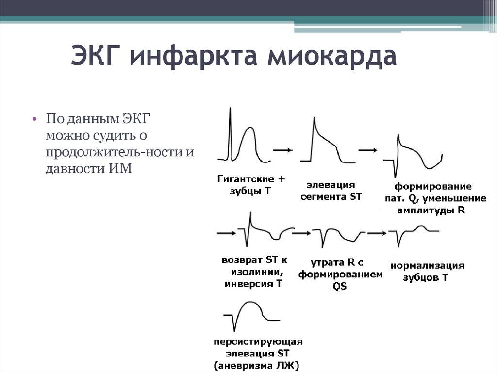 фото кардиограммы с инфарктом виноградники славятся