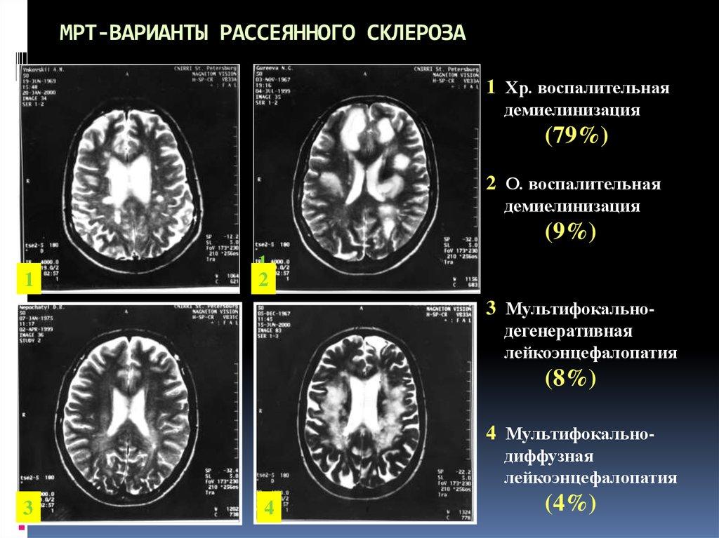 Ранняя диагностика рассеянного склероза