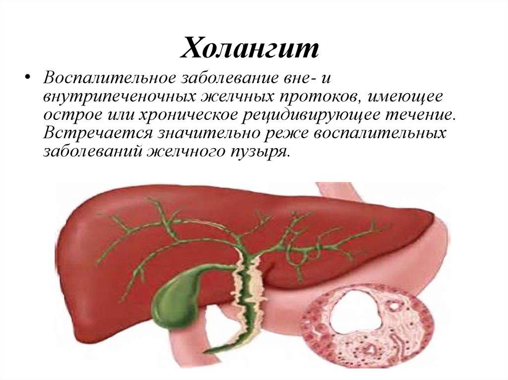 Дискинезия желчных путей Здоровье печени