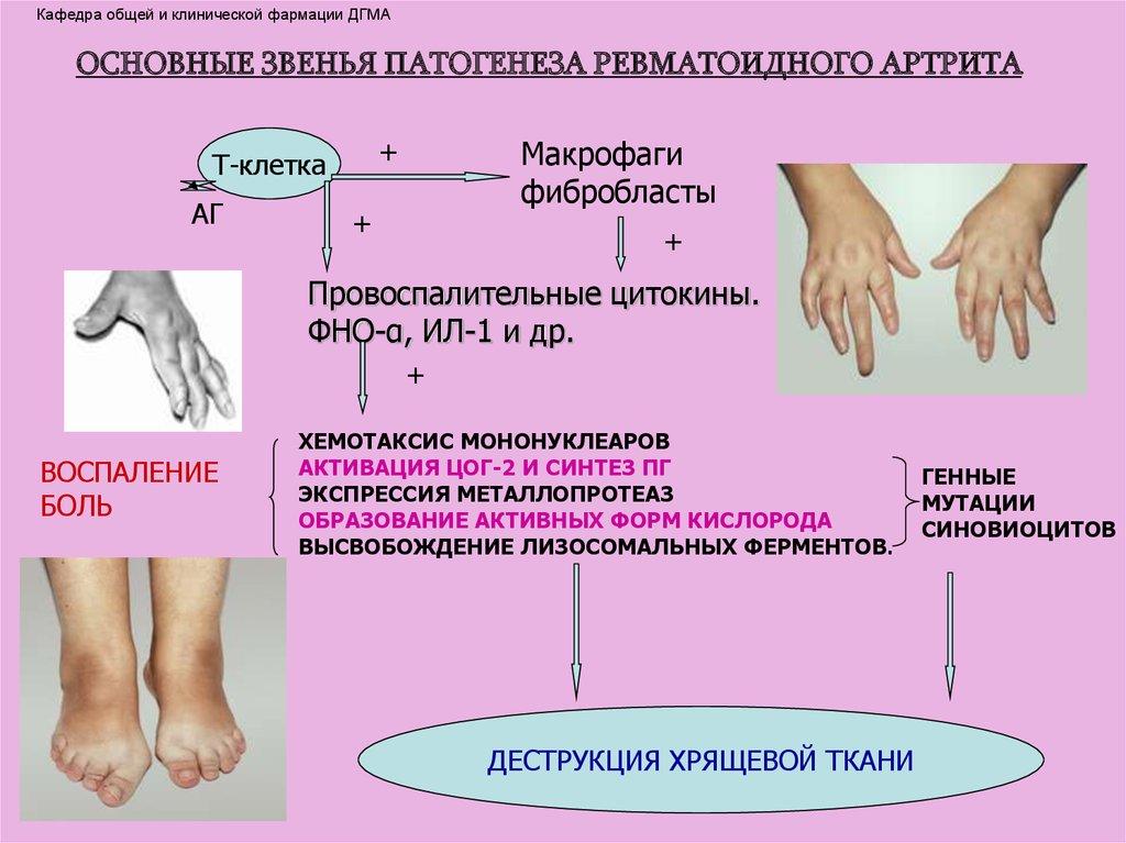 Хруст суставов ломота в костях у женщин климактического возраста болят коленные суставы и отекают ноги