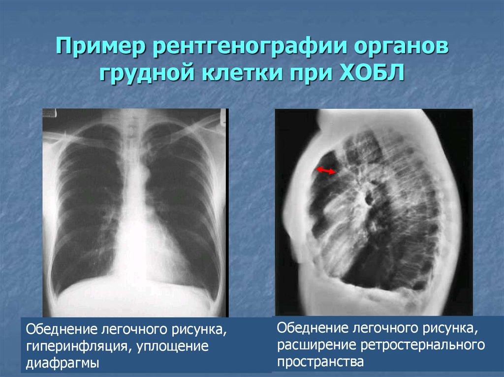 принято рентгенография органов грудной клетки в выходной в новосибирске термобелья полусинтетика