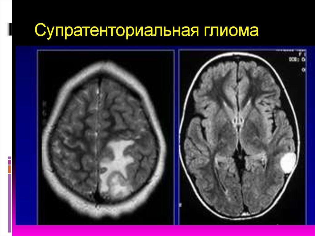 download Українська народна писанка 2008