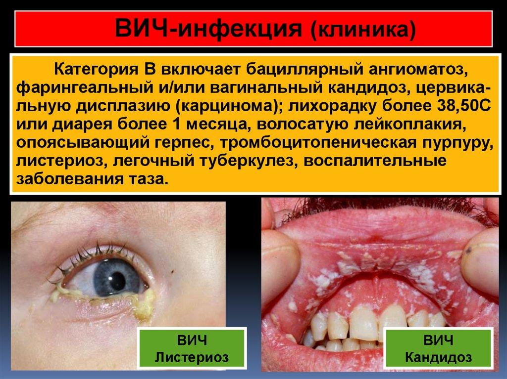 Вагинальный кандидоз вич инфекция