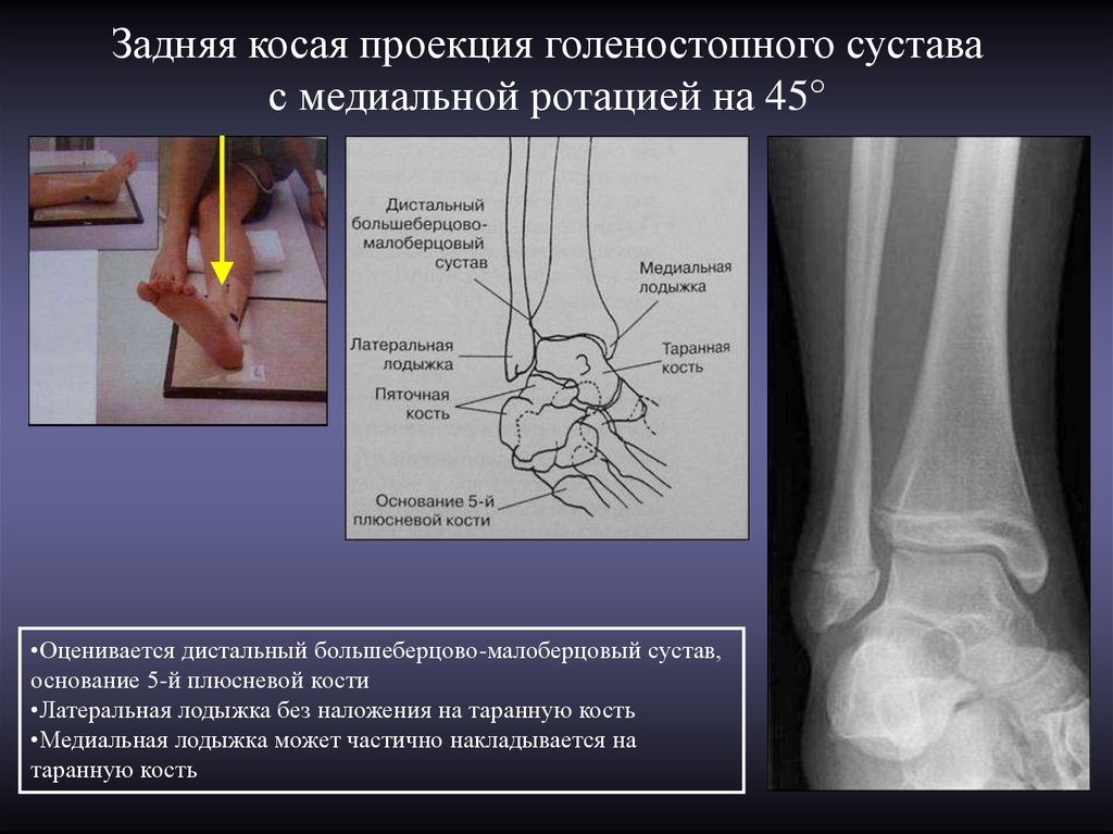 medial ankle projection Medical definition of malleolus: an expanded projection or process at the distal end of the fibula or tibia at the level of the ankle.