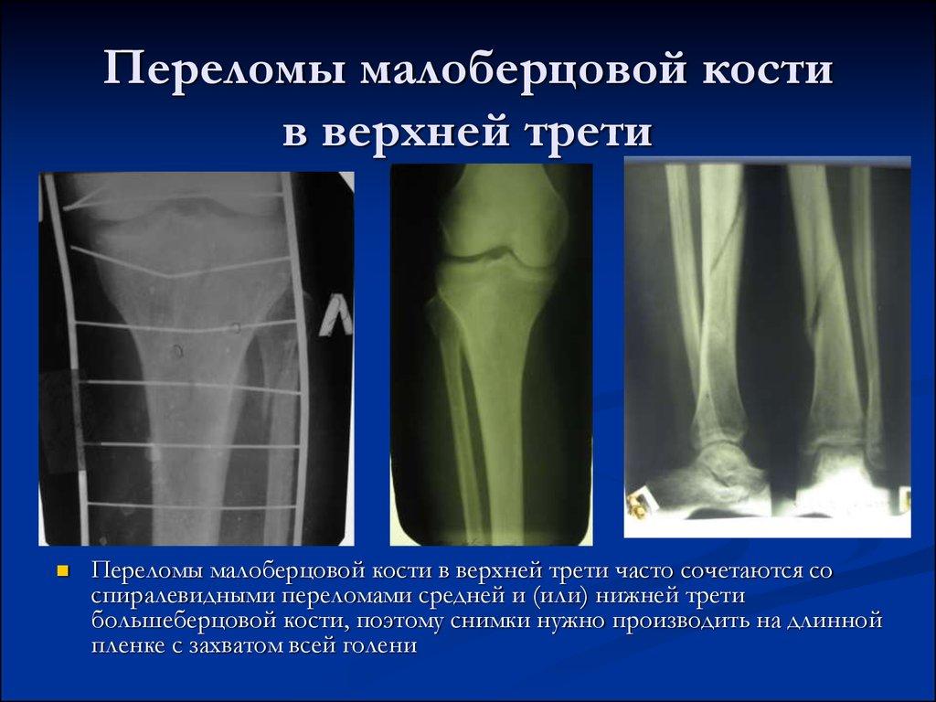 трещина большой берцовой кости колено если кошка заболела