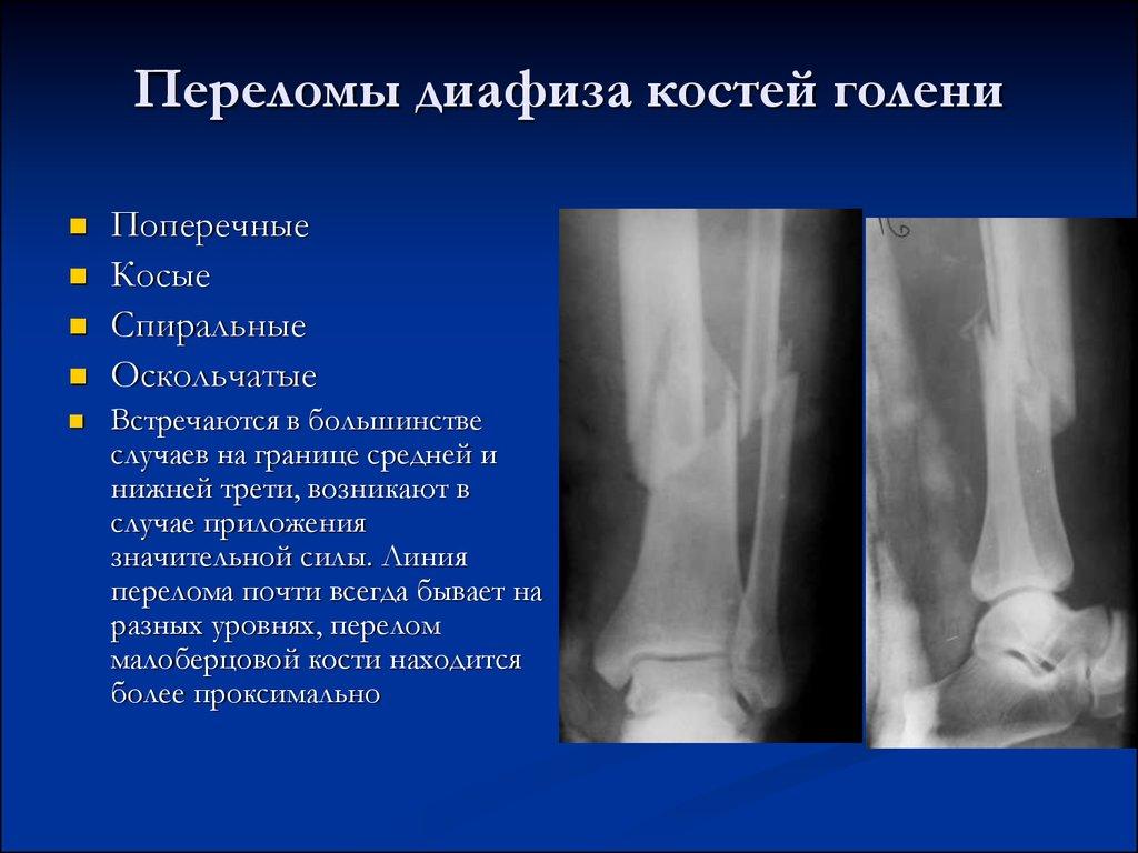 Виды переломов костей руки