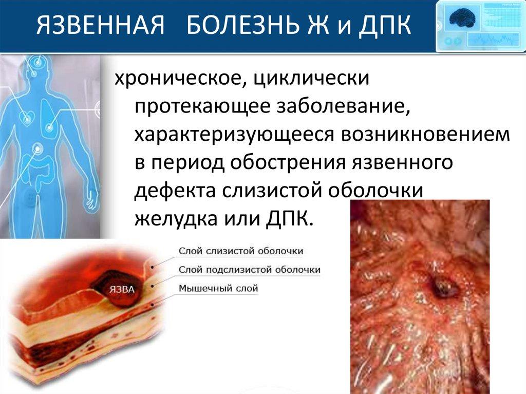 Язвенная болезнь дпк обострение