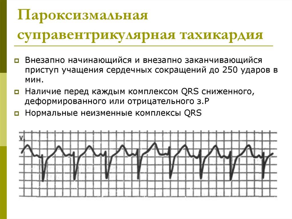 Пароксизмальная тахикардия клиника диагностика