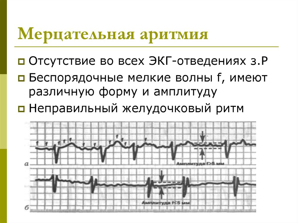 Мерцательная аритмия сердца экг