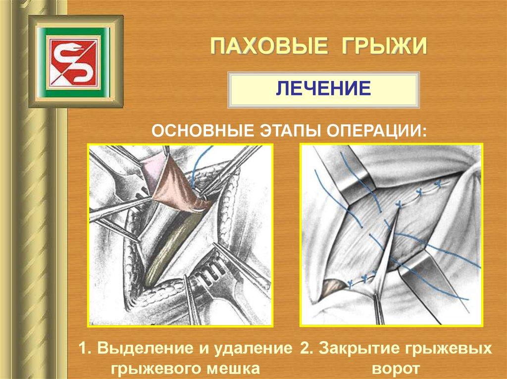 Лечение паховой грыжи в москве