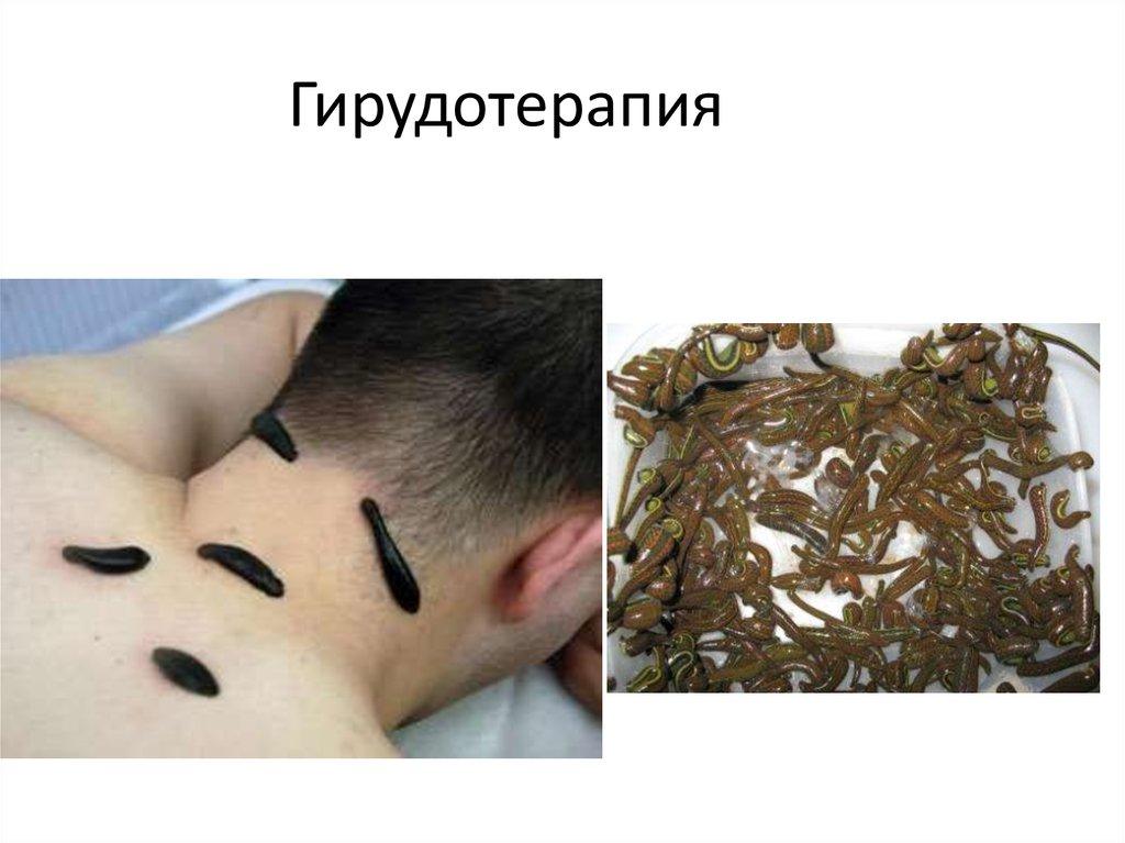 Гирудотерапия московская
