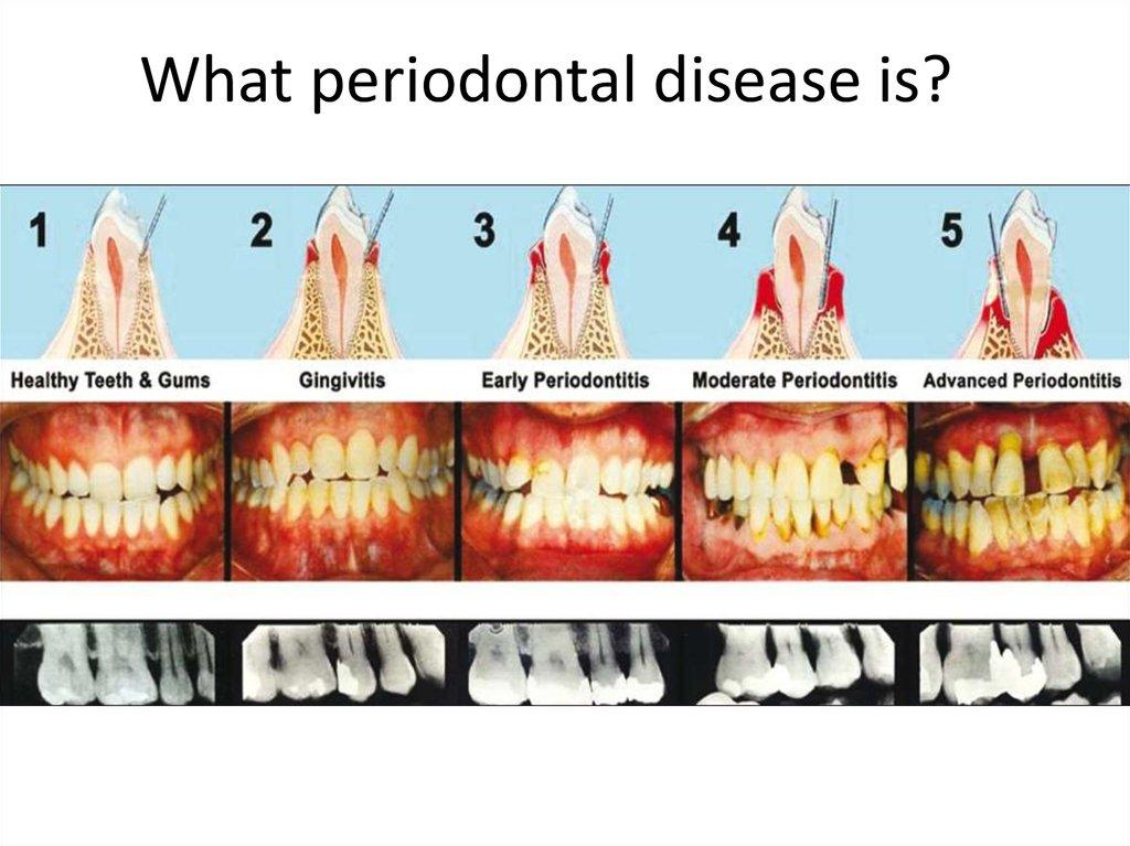 What Periodontal Disease Is презентация онлайн