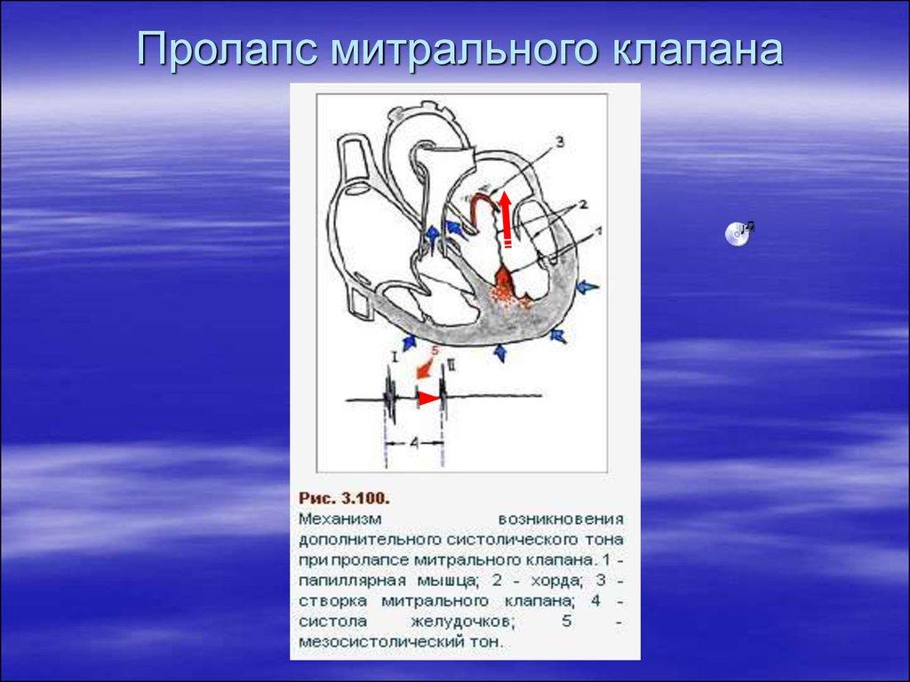 Пролапс митрального клапана клиника