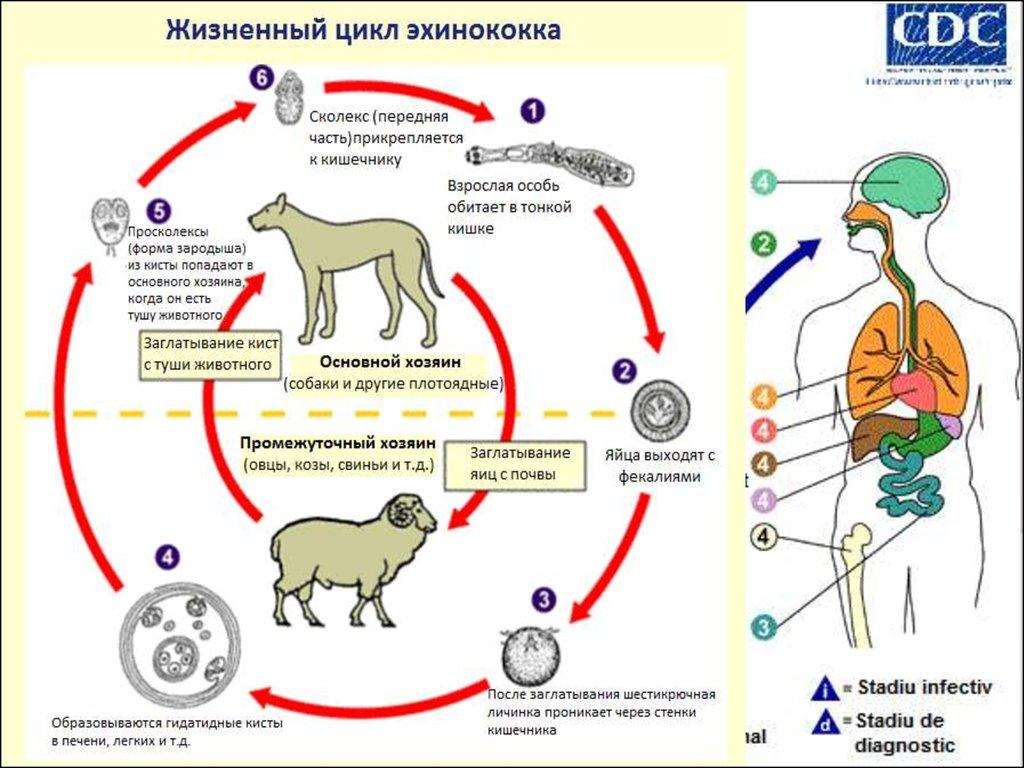 Лечение детского эхинококкоза