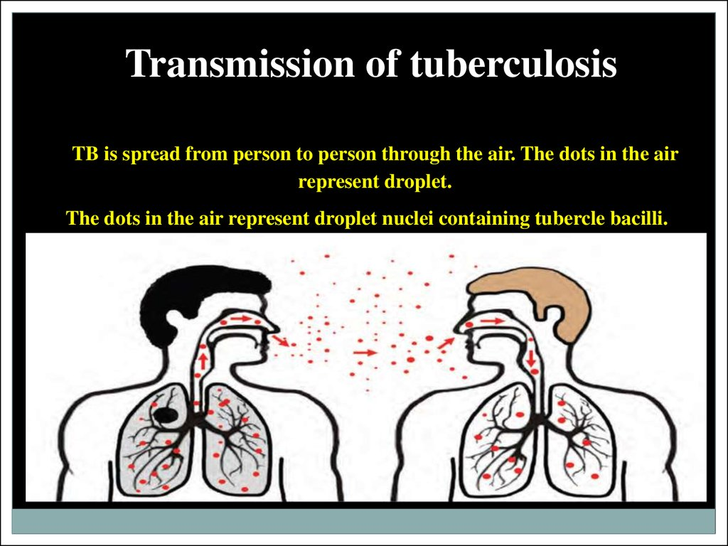 Transmission of tuberculosis
