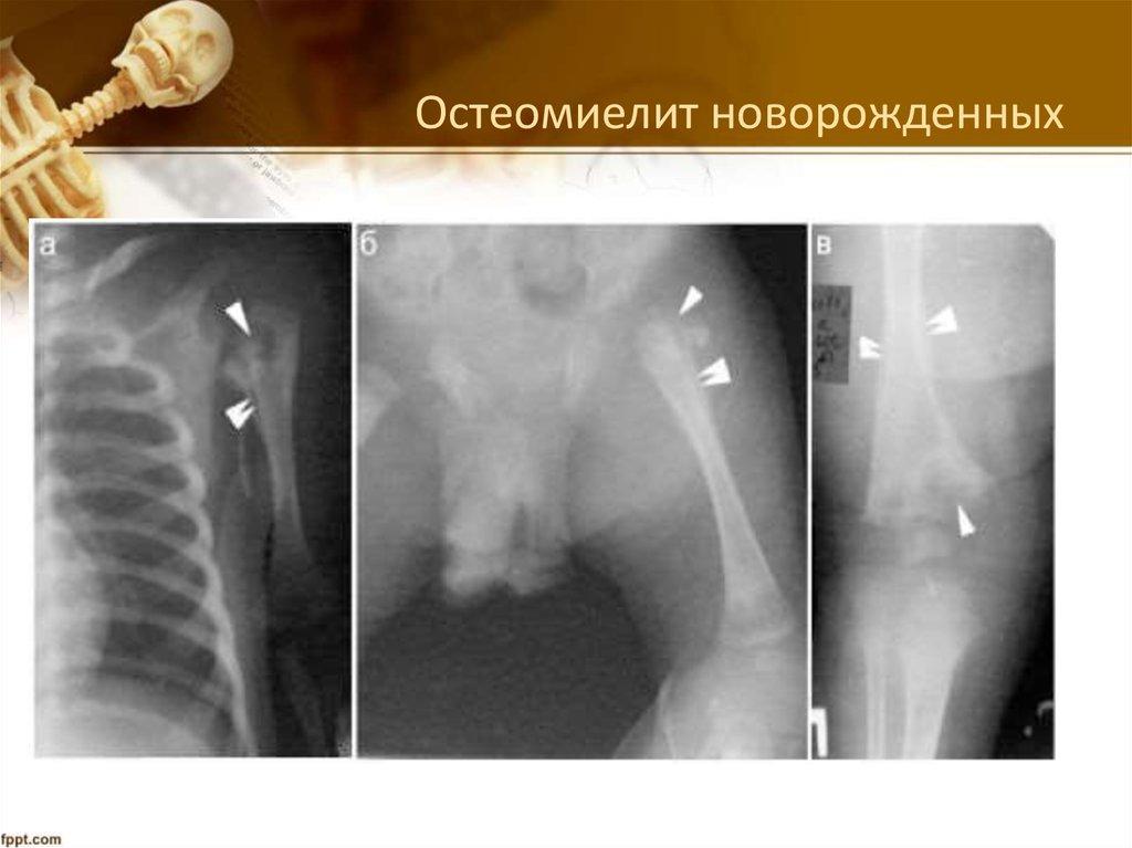Рентгенологические признаки остеомиелита челюстного сустава бандаж на локтевой сустав при эпикондилите тривес т-8202 в харькове