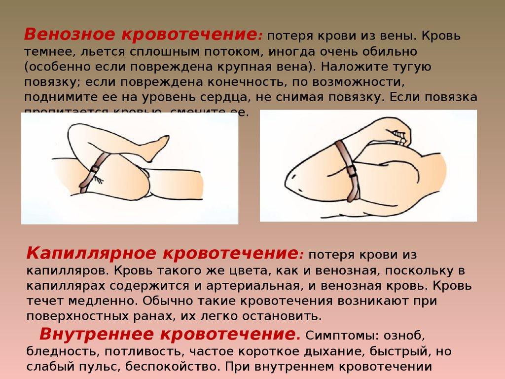 Приемы оказания медицинской помощи в чрезвычайных ситуациях медь цена в Березняки