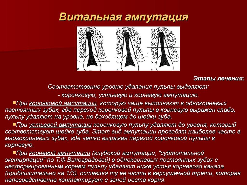 Лечение пульпита методом витальной ампутации