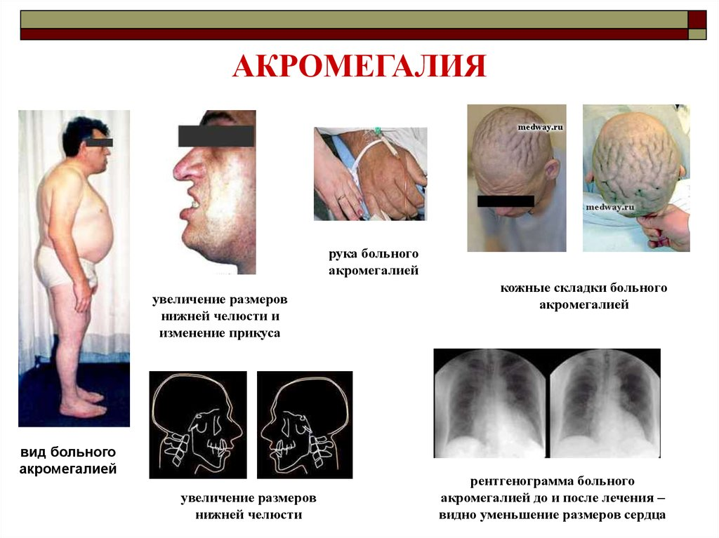 acromegaly paper Acromegaly complication screening data were collected from paper and electronic bioscientifica abstracts is the gateway to a series of products that.