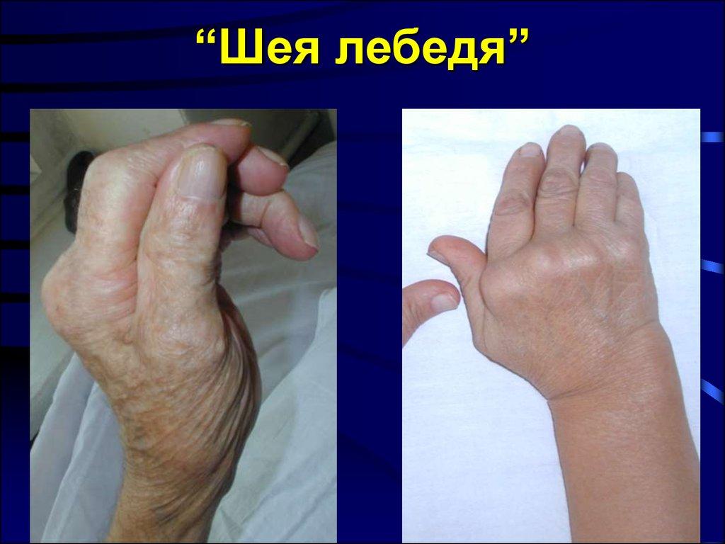 роды при ревматоидный артрит