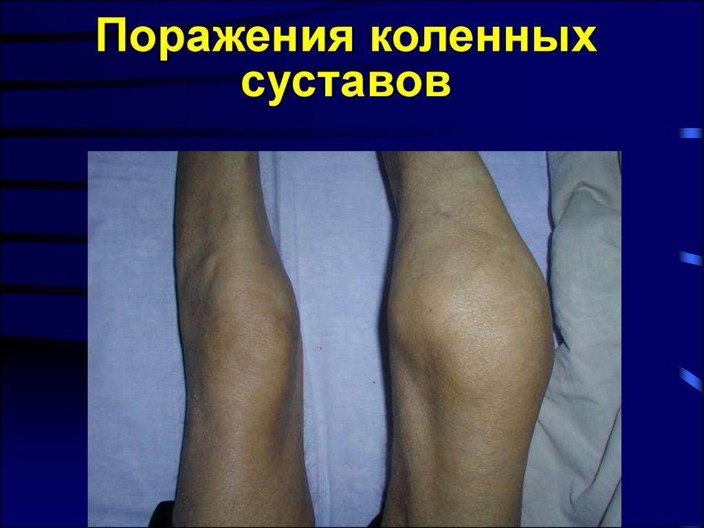 Полиостеоартроз с преимущественным поражением коленных суставов как лечить плечевой сустав после вывиха