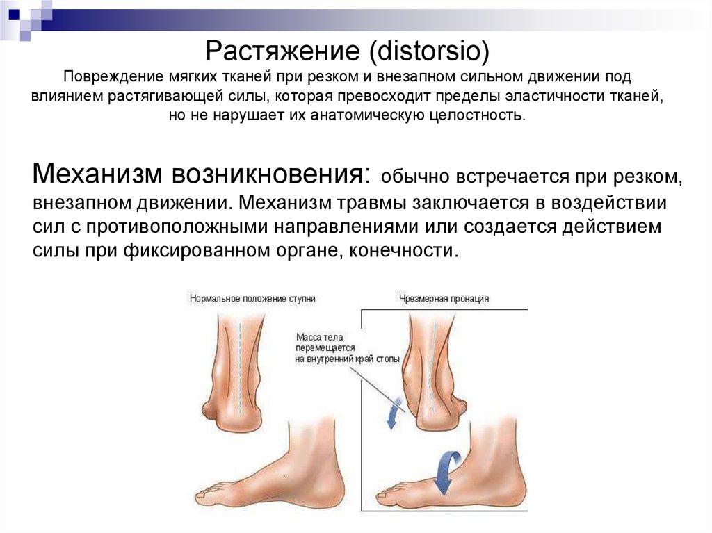 травма мягких тканей коленного сустава