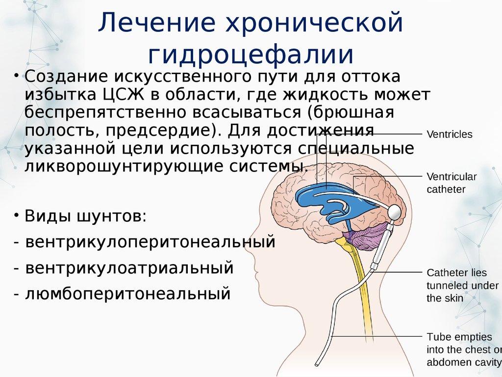 Общая сообщающаяся гидроцефалия заместительного характера