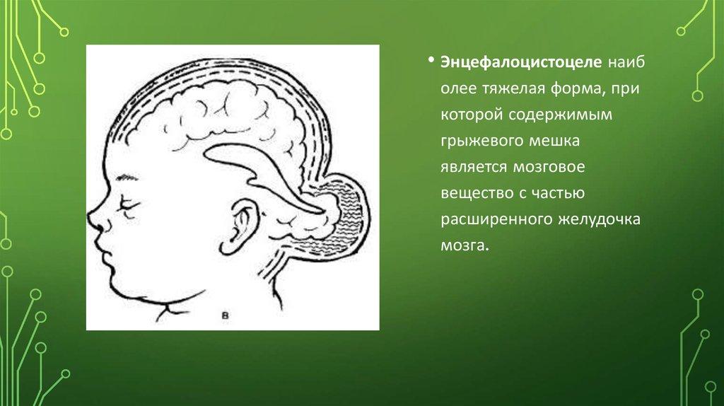 грыжа мозга