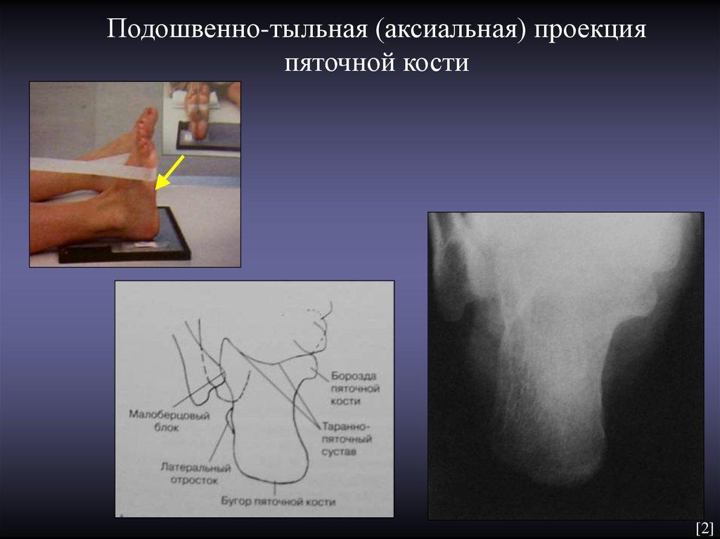 последние укладка пяточная кость фото болезнь, только коронавирус