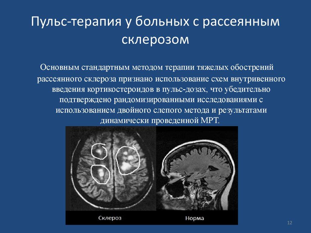 сколько длится обострение при рассеянном склерозе Некоторые также упрекнули