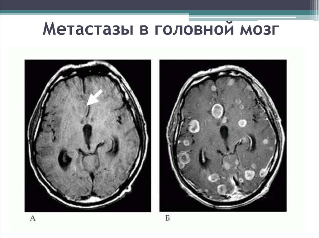 Метастазы в костном мозге симптомы