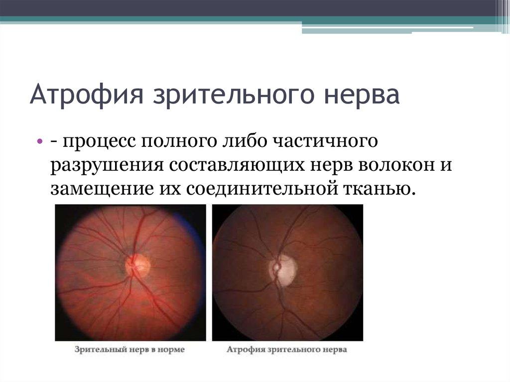 уже атрофия зрительного нерва в картинках замену фокусирующих