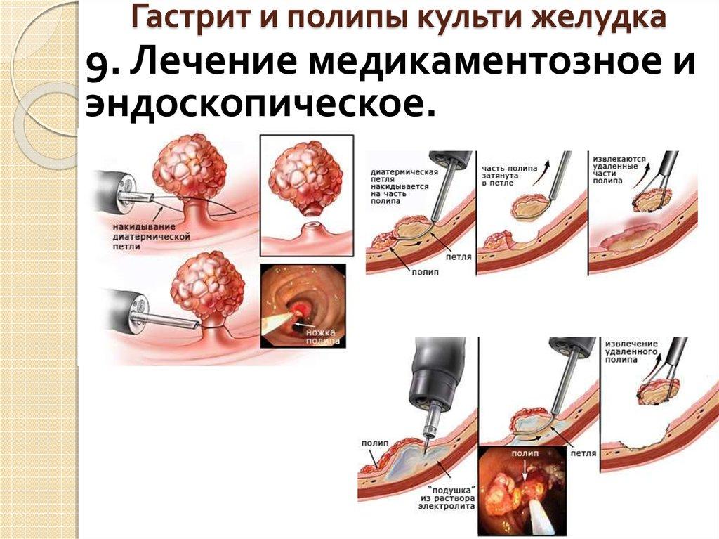 Виды гастрита желудка симптомы лечение