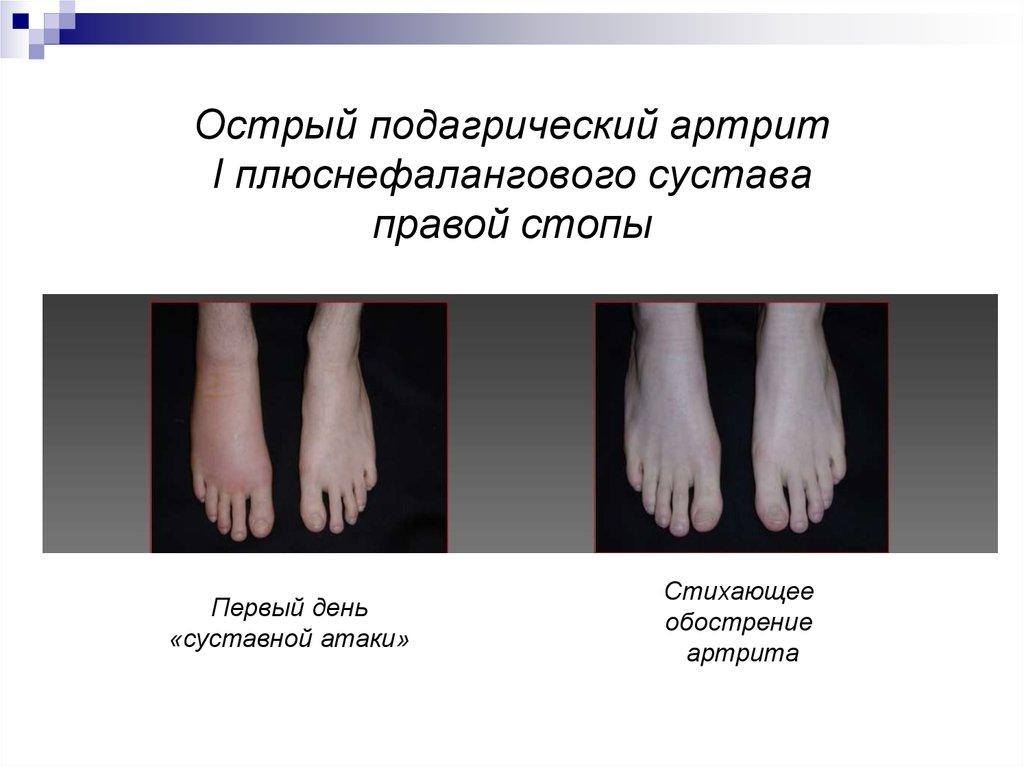 Подагрический артрит плюснефалангового сустава артроз 3 степени тазобедренного сустава стоимость операции