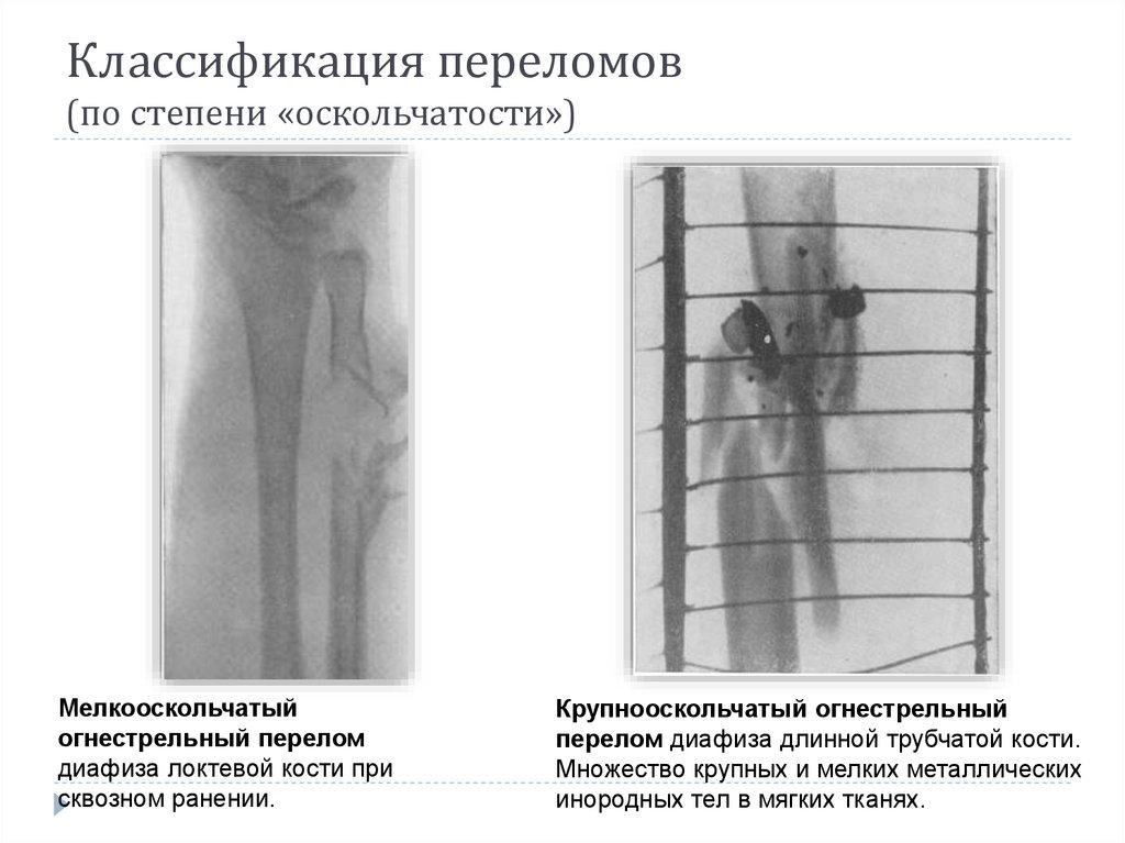Презентация по го первая помощь при переломах костей и вывихах суставов