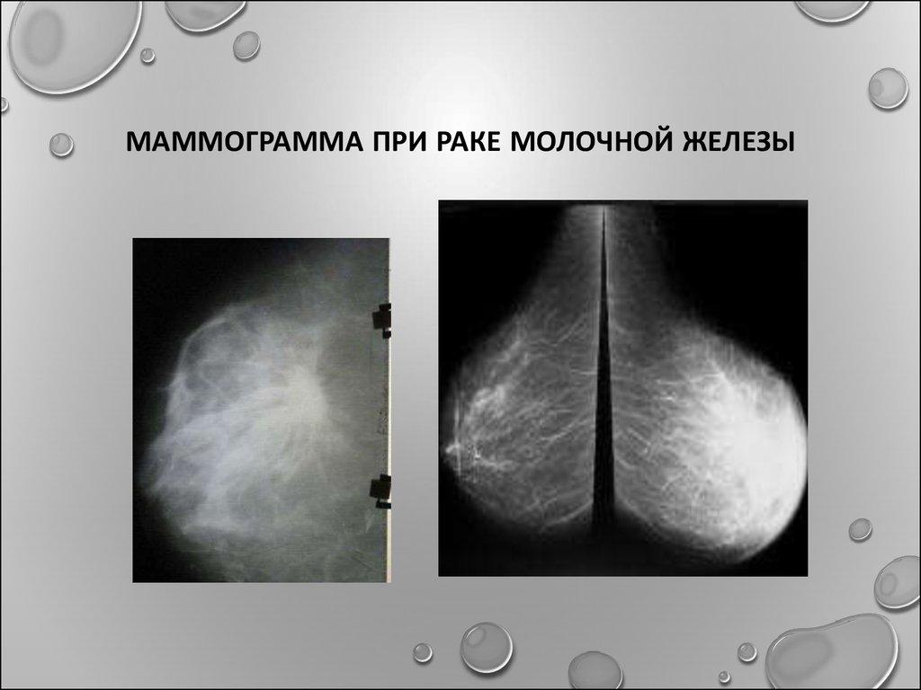 Маммография показала уплотнение в молочной железе