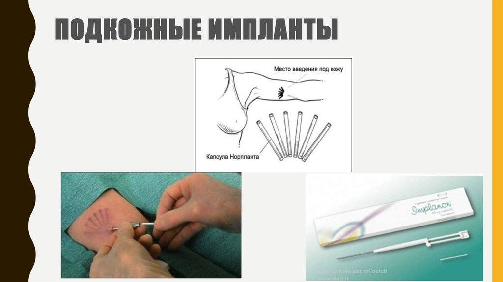 an analysis of the norplant plastic implants in medical use Summary basis of approval: levonorgestrel implants, norplant indications for use of norplant reproduction, and teratology tests medical rationale and.