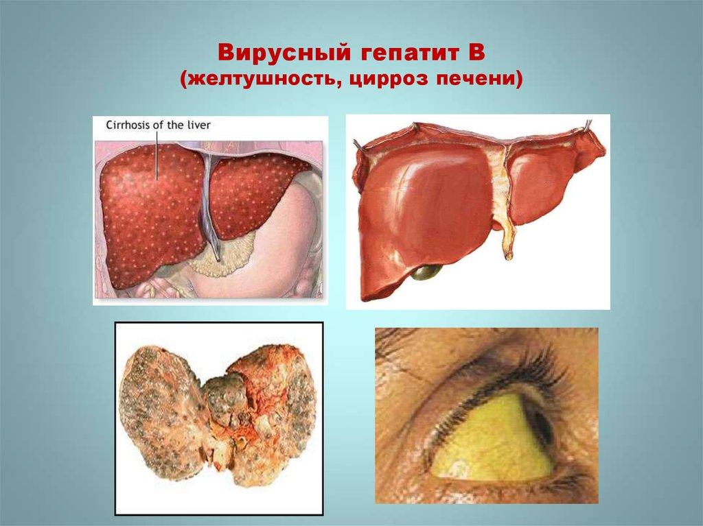 языка гепатит печени в картинках экспонаты