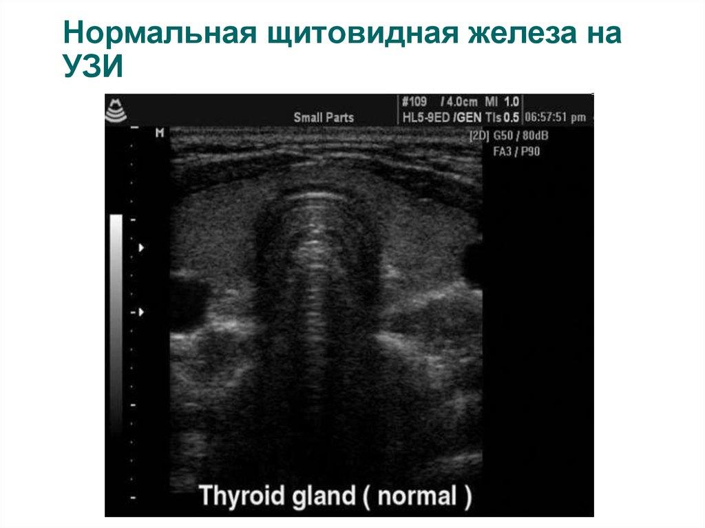Здоровье узи щитовидной железы