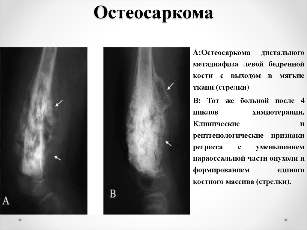 osteosarcoma research paper Cancer november 10, 2017 medicine scholars develop innovative targeted delivery system for treating osteosarcoma november 10, 2017, hong kong baptist university.