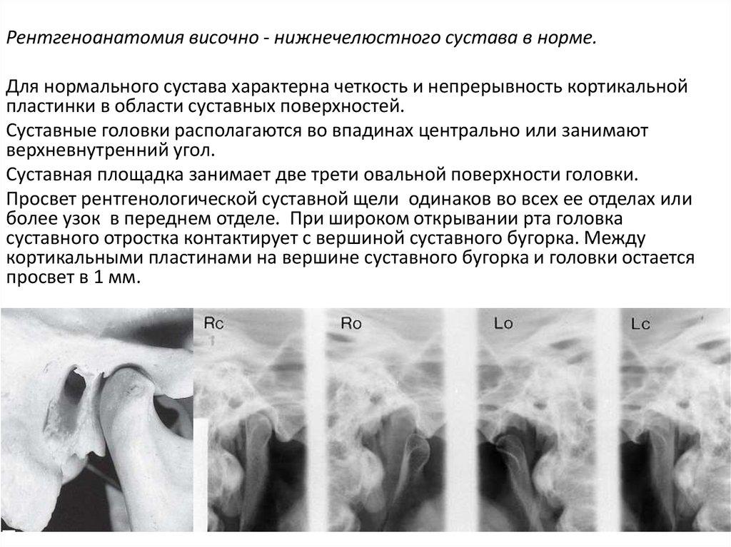 Рентгенологическая картина при хронических артритах височно-нижнечелюстного сустава уреаплазма болят суставы