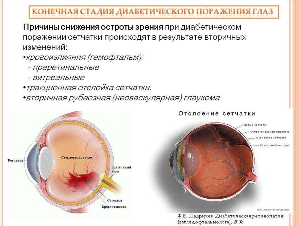 Причина слепоты при сахарном диабете это